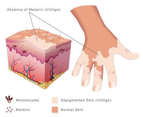Vitiligo Symptoms and Stress Control