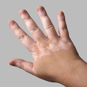 The Vitiligo Condition