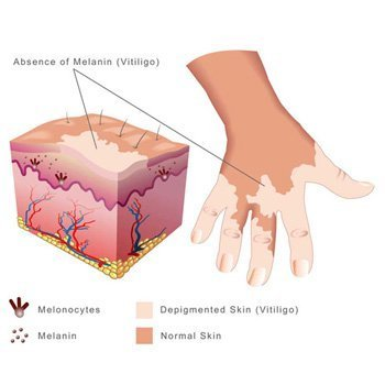 Absence of Vitiligo & Melanocytes